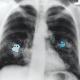 Maxi und Charlie - Mikroplastikpartikel im Körper - microplastics in our bodies